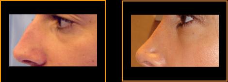 Rinoplastia - antes/después
