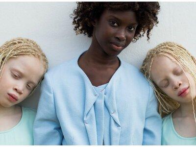 Lara e Mara: as gêmeas albinas que estão revolucionando o mundo da moda