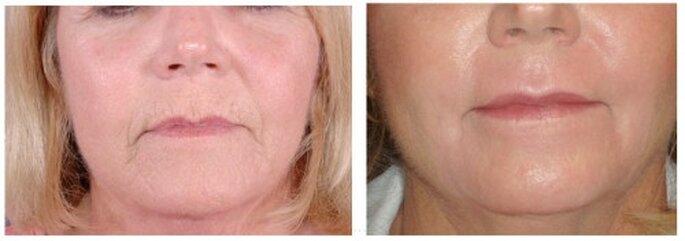 Tratamiento para la piel madres y madrinas