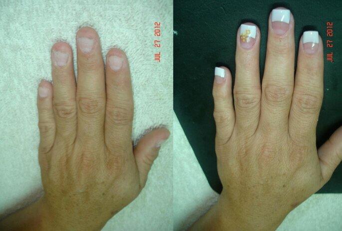 Antes y depués de un diseño de uñas acrílicas. Foto: Rubby Nails