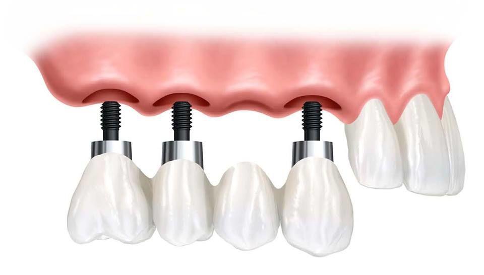 Odontosur