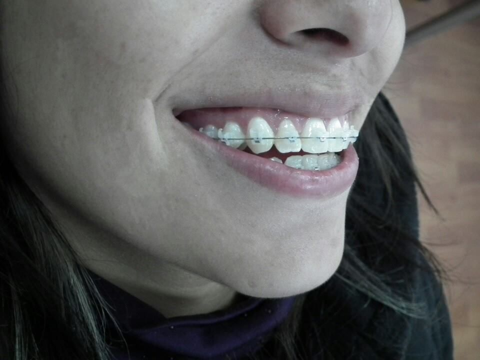 Idealix Clínica Dental