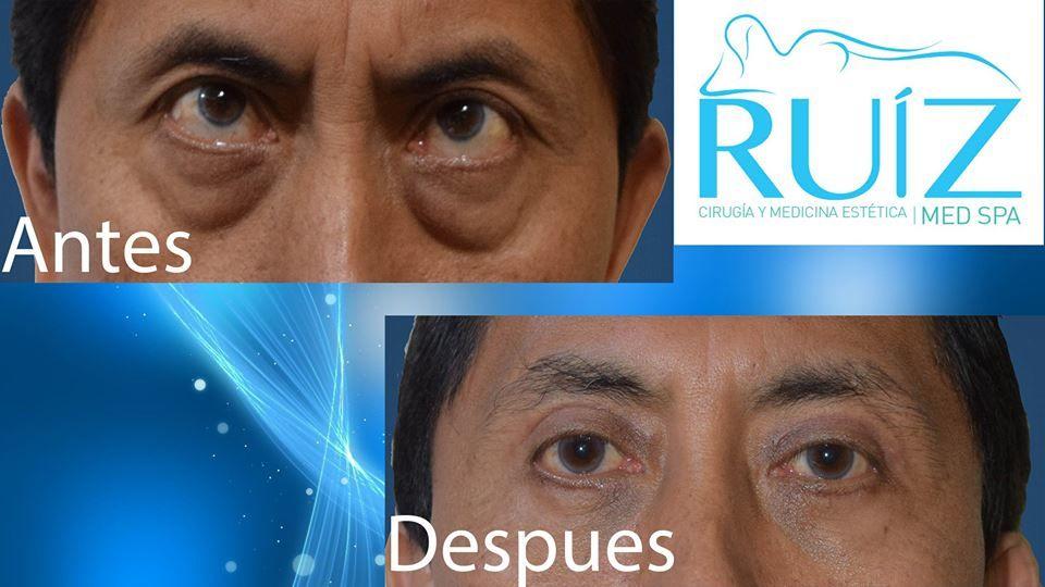 Cirugía Estética Ruíz