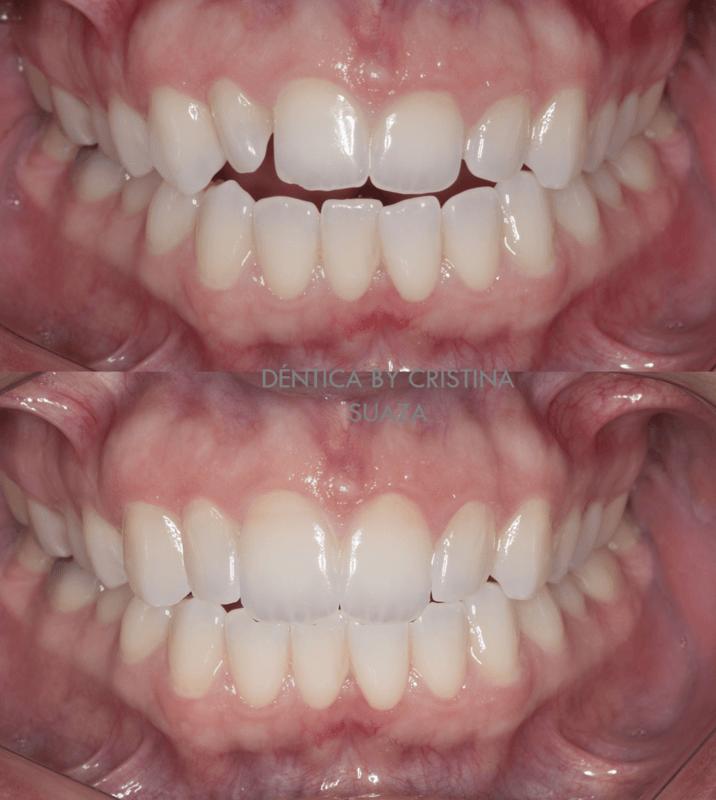Dentica by Cristina Suaza