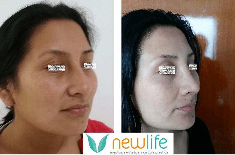 Newlife Medicina Estética y Cirugía Plástica