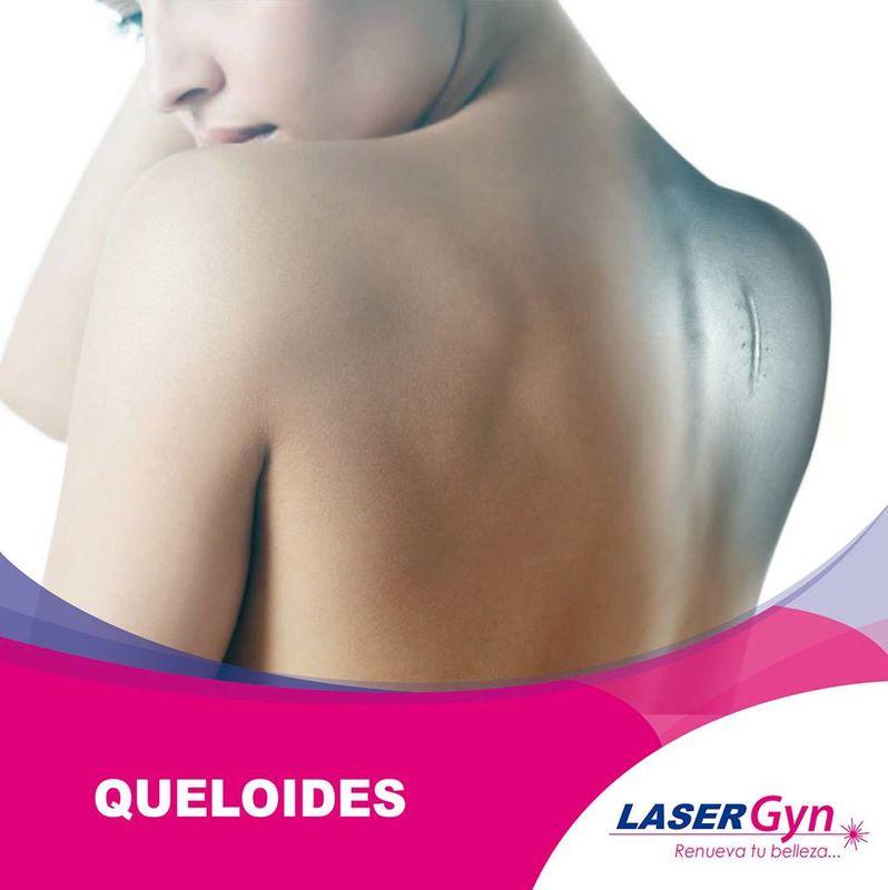 LaserGyn